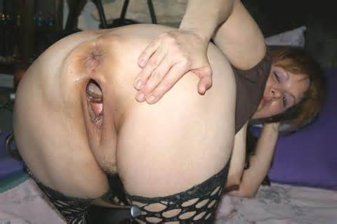 Fisting And Objects Huge Gaping Stretch Pussy Holes Take A Ff20
